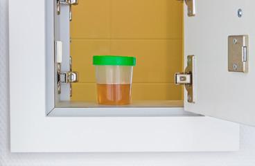 Urinbehälter