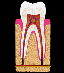 Dental medicine: Tooth cut or section isolated