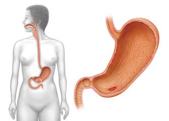 Magen und Magengeschwür