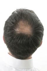 Tonsure-perte de cheveux