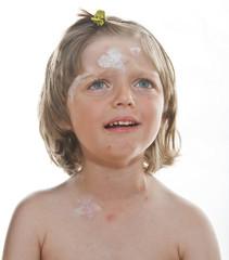 ill little girl - smallpox, chickenpox