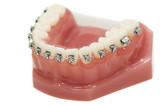 lower dental jaw bracket braces model isolated poster