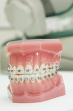 lower and upper dental jaw braces model poster