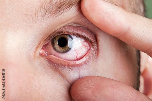 Fototapeta Blood capillary human eye