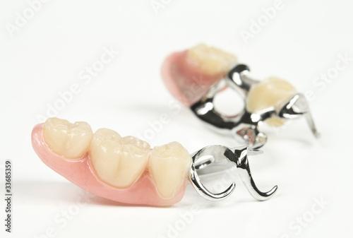 Klammerprothese, Zahnersatz - 33685359