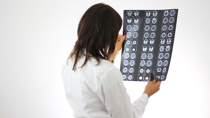 Female doctor looking at xray of human brain, isolated