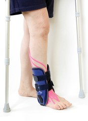 orthopedic ankle contusion