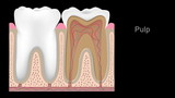 Stages of tooth decay, hd