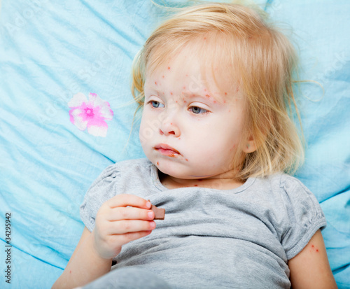 Sick girl is eating chocolate