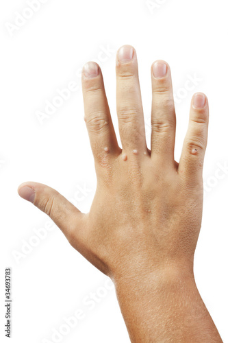 hand with warts isolated on white background
