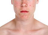 Pimple poster