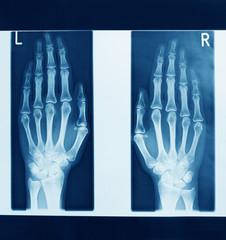 röntgenbild der hände