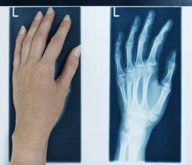 röntgenbild linke hand