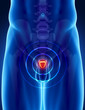 Prostate cancer concept
