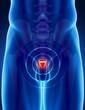 Prostate cancer concept