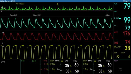 EKG Screen Loopable