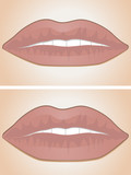 lip filler before and after poster
