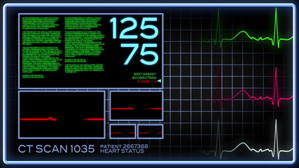 Fictional Heart Monitor Screen