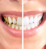 Smile. - 35152384