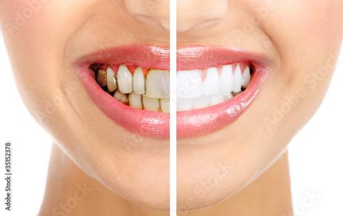 Fototapeten,zahnärztin,zahnarzt,zahnheilkunde,lächeln