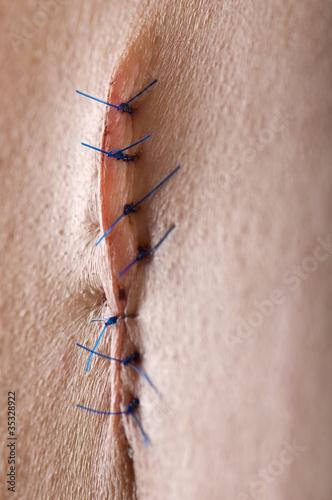 Dramatically lightened back surgery close-up.