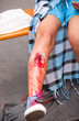 serious injury on girl's leg