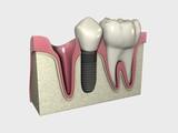 Implante 3D Colocado 02