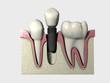 Implante 3D Colocado 05