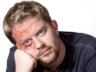 Große Verletzung im Gesicht eines Mannes