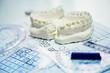 orthodontic molds