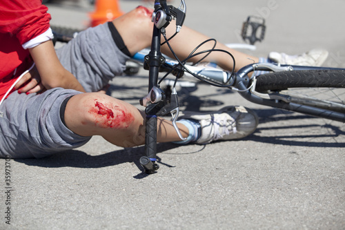 bike injuries