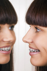 Girl with braces reflected in mirror