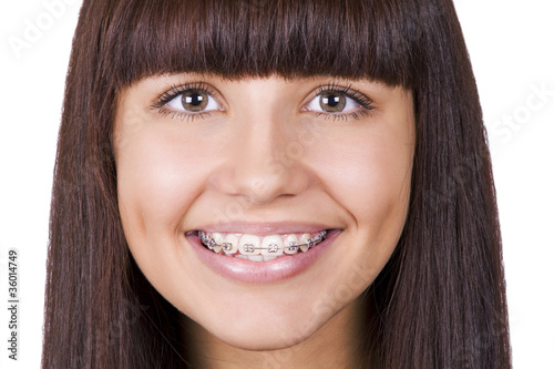 Happy teen with  braces