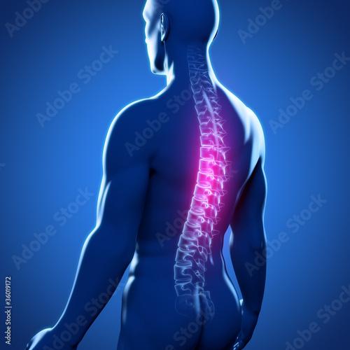 Männlicher Rücken mit Wirbelsäule - 36019172