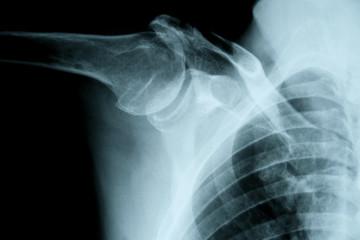 Röntgenbild Schultergelenk