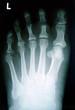 Osteotomie Zehe, Vorfuß