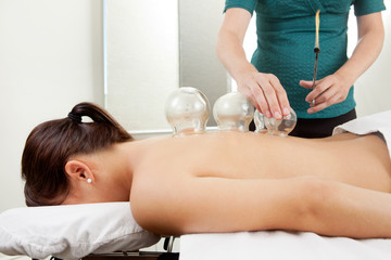 Cuppping Acupuncture Treatment on Female Back