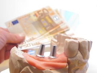 Zahnersatz kostet Geld