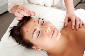 Facial Acupuncture Treatment Needle Stimulation
