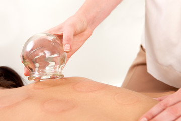 Acupuncturist Removing Fire Cupping Bulb