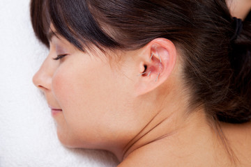 Aurical Acupuncture Treatment
