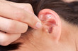 Ear Acupuncture Detail