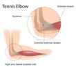 Tennis elbow, eps8
