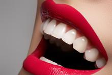 Close-up sourire heureux femme en bonne santé avec des dents blanches