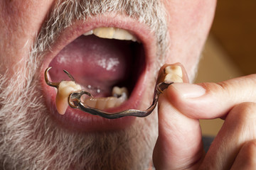 Hand legt Zahnprothese in den Mund