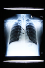 x-ray image of Screws in the esophagus of the body.