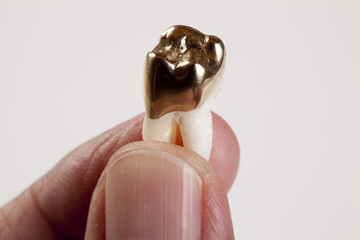 Hand hält Zahn mit Wurzel und Krone