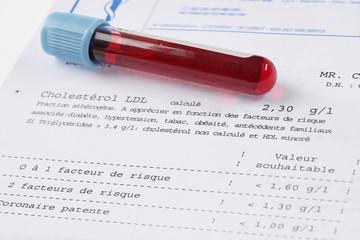 Santé - Taux de Cholestérol élevé