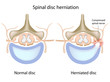 Spinal disc herniation, eps8