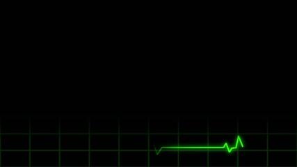 Heart Monitor Lower 3rd Loop